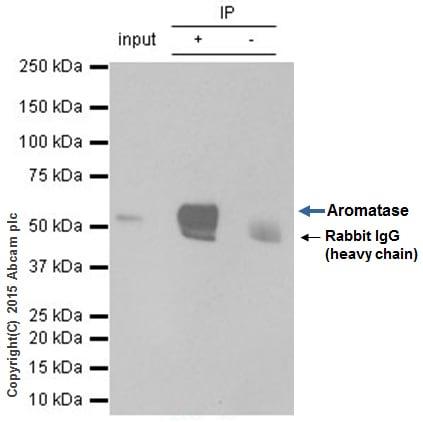 Immunoprecipitation - Anti-Aromatase antibody [EPR4534(2)] - BSA and Azide free (ab236052)