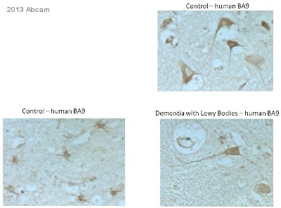 Immunohistochemistry (Formalin/PFA-fixed paraffin-embedded sections) - Anti-LAMP1 antibody - Lysosome Marker (ab24170)