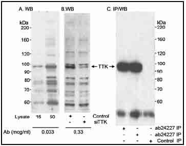 Western blot - Anti-Mps1 antibody (ab24227)