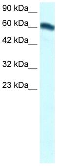 Western blot - Anti-FOXC2 antibody (ab24340)