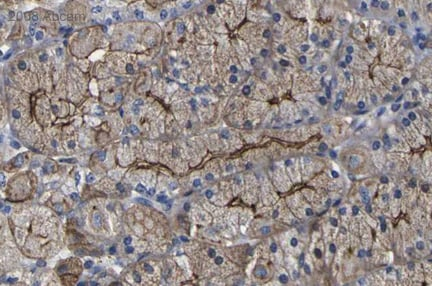 Immunohistochemistry (Formalin/PFA-fixed paraffin-embedded sections) - TBC1D4 antibody (ab24469)