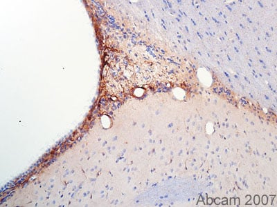 Immunohistochemistry (Formalin/PFA-fixed paraffin-embedded sections) - Anti-SOX21 antibody (ab24604)