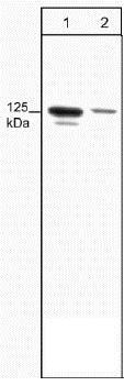 Western blot - Anti-FAK (phospho Y397) antibody [M121] (ab24781)