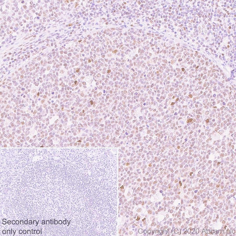 Immunohistochemistry (Formalin/PFA-fixed paraffin-embedded sections) - Anti-FOXP4 antibody [EPR22714-2] (ab242127)