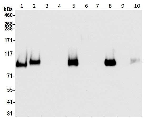 Western blot - Anti-CD44 antibody [BLR038F] (ab243894)