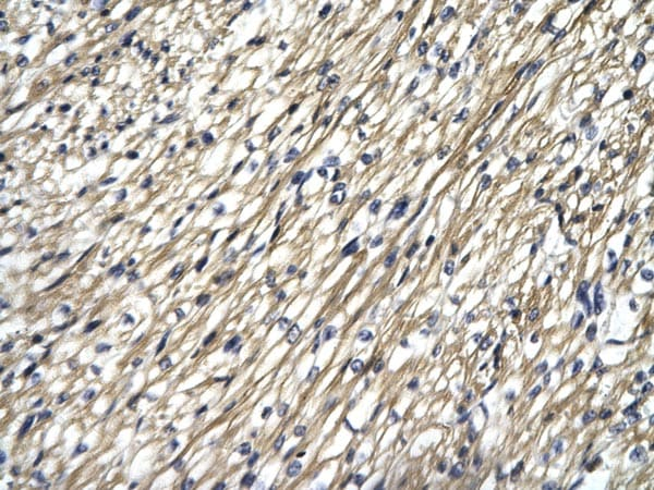 Immunohistochemistry (Formalin/PFA-fixed paraffin-embedded sections) - Anti-STAT4 antibody (ab25940)
