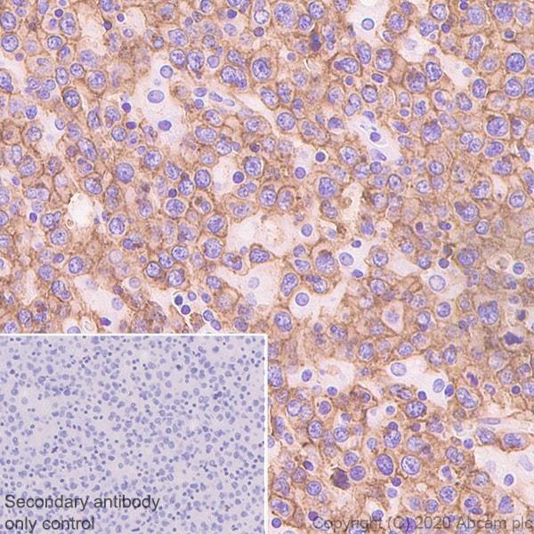 Immunohistochemistry (Formalin/PFA-fixed paraffin-embedded sections) - Anti-CXCR5 antibody [EPR23463-30] (ab254415)