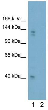 Western blot - Anti-Gli2 antibody - ChIP Grade (ab26056)