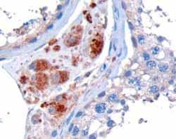 Immunohistochemistry (Formalin/PFA-fixed paraffin-embedded sections) - Anti-STK35 antibody (ab26065)