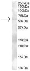 Western blot - Anti-TZFP antibody (ab26066)