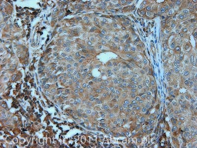 Immunohistochemistry (Formalin/PFA-fixed paraffin-embedded sections) - Anti-MRas antibody (ab26303)