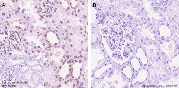 Immunohistochemistry (Formalin/PFA-fixed paraffin-embedded sections) - Anti-STAT6 (phospho Y641) antibody [EPR22599-78] (ab263947)