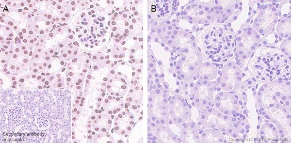 Immunohistochemistry (Formalin/PFA-fixed paraffin-embedded sections) - Anti-STAT6 (phospho Y641) antibody [EPR22599-78] - BSA and Azide free (ab263950)