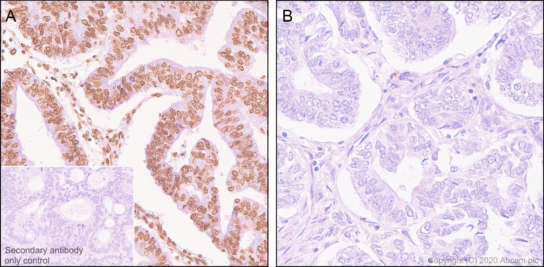 Immunohistochemistry (Formalin/PFA-fixed paraffin-embedded sections) - Anti-STAT3 (phospho Y705) antibody [EPR23968-52] (ab267373)