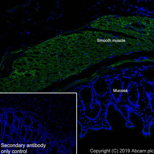Immunohistochemistry (Frozen sections) - Anti-Fibronectin antibody [EPR23110-46] (ab268020)