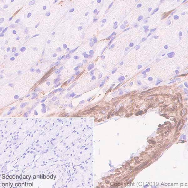 Immunohistochemistry (Formalin/PFA-fixed paraffin-embedded sections) - Anti-Fibronectin antibody [EPR23110-46] (ab268020)