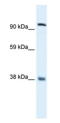 Western blot - Anti-EVI1 antibody (ab28457)