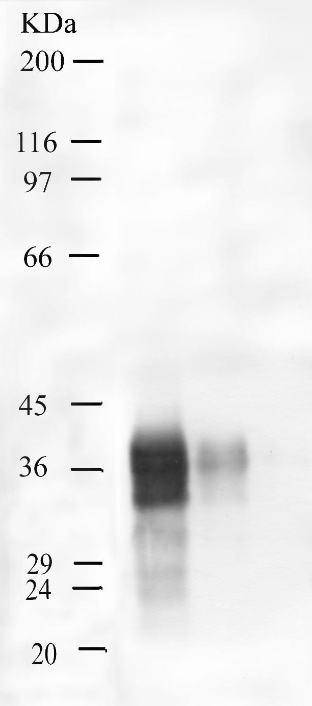 Western blot - Anti-Kallikrein 5 antibody - Kallikrein loop (ab28565)