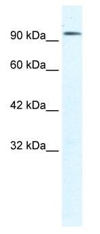 Western blot - Anti-CLCN3 antibody (ab28736)
