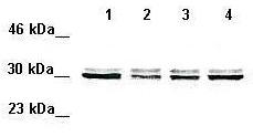 Western blot - Anti-VDAC1/Porin antibody (ab28777)