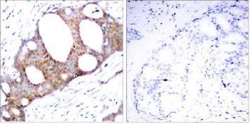 Immunohistochemistry (Formalin/PFA-fixed paraffin-embedded sections) - Anti-GSK3 alpha (phospho S21) antibody (ab28808)