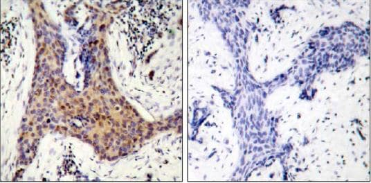 Immunohistochemistry (Formalin/PFA-fixed paraffin-embedded sections) - Anti-Bad (phospho S136) antibody (ab28824)