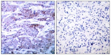 Immunohistochemistry (Formalin/PFA-fixed paraffin-embedded sections) - Anti-Bad antibody (ab28840)