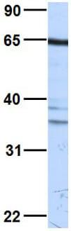 Western blot - Anti-PKR antibody (ab28943)
