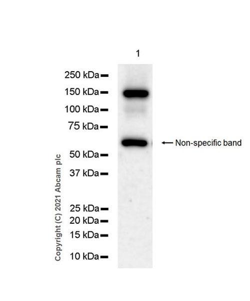 Western blot - Anti-MDA5 antibody [EPR24014-52] (ab283311)