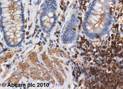 Immunohistochemistry (Formalin/PFA-fixed paraffin-embedded sections) - Anti-Actin antibody [ACTN05 (C4)] (ab3280)