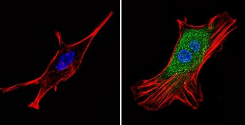 Immunocytochemistry/ Immunofluorescence - Anti-Proteasome 26S S3/PSMD3 antibody (ab3316)