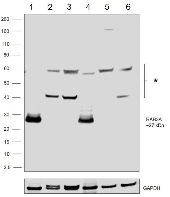 Western blot - Anti-Rab3A antibody (ab3335)