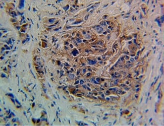 Immunohistochemistry (Formalin/PFA-fixed paraffin-embedded sections) - Anti-Blood Group Lewis y antibody [F3] (ab3359)