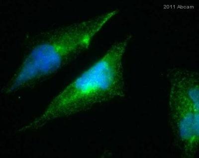 Immunocytochemistry - Anti-PICK1 antibody (ab3420)