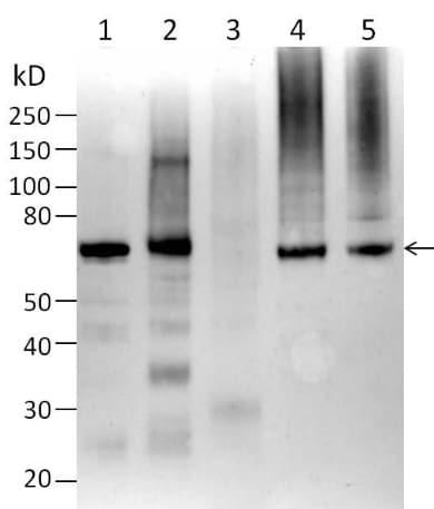 Western blot - Anti-PMP70 antibody (ab3421)