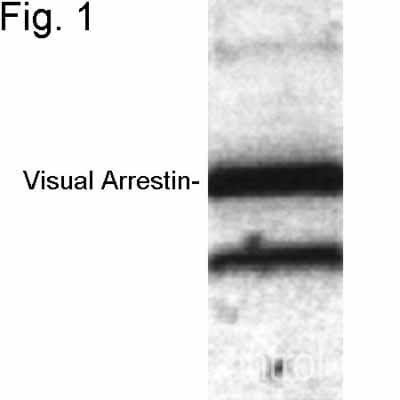 Western blot - Anti-Retinal S antigen antibody (ab3435)