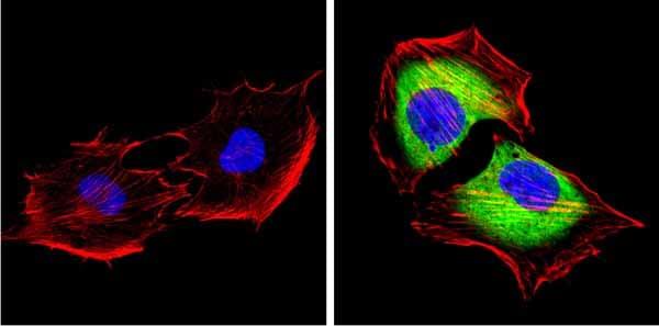 Immunocytochemistry/ Immunofluorescence - Anti-SAP97 antibody (ab3437)