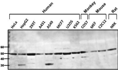 Western blot - Anti-beta 1 Adrenergic Receptor antibody (ab3442)