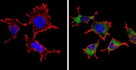 Immunocytochemistry/ Immunofluorescence - Anti-Endostatin/COL18A1 antibody (ab3453)