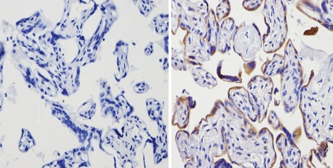 Immunohistochemistry (Formalin/PFA-fixed paraffin-embedded sections) - Anti-Adenosine Receptor A2a antibody (ab3461)