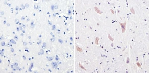 Immunohistochemistry (Formalin/PFA-fixed paraffin-embedded sections) - Anti-CPEB1 antibody (ab3465)
