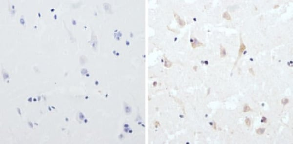 Immunohistochemistry (Formalin/PFA-fixed paraffin-embedded sections) - Anti-CPEB1 antibody (ab3465)