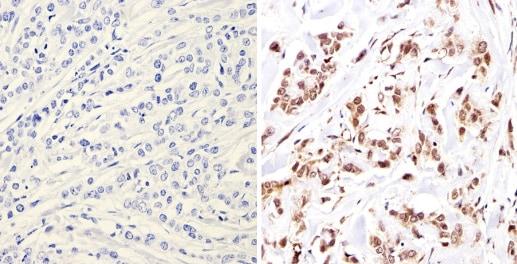 Immunohistochemistry (Formalin/PFA-fixed paraffin-embedded sections) - Anti-Nuclear Receptor Corepressor NCoR antibody - ChIP Grade (ab3482)