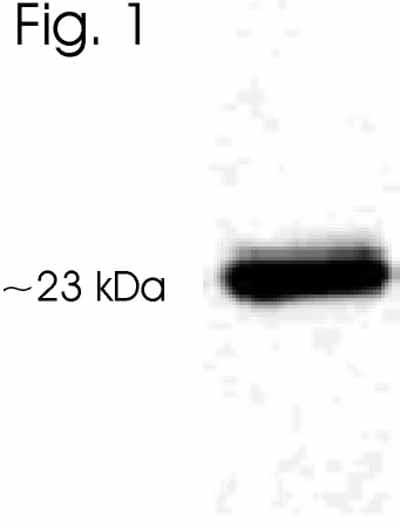 Western blot - Anti-Serotonin N-acetyltransferase antibody (ab3506)