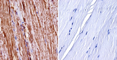 Immunohistochemistry (Formalin/PFA-fixed paraffin-embedded sections) - Anti-nNOS (neuronal) antibody (ab3511)