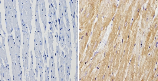 Immunohistochemistry (Formalin/PFA-fixed paraffin-embedded sections) - Anti-Calsequestrin antibody (ab3516)