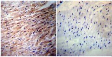 Immunohistochemistry - Anti-iNOS antibody (ab3523)