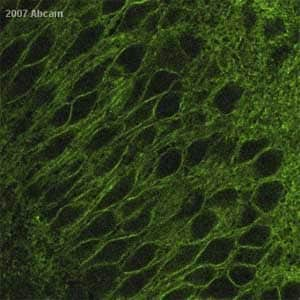 Immunohistochemistry (Formalin/PFA-fixed paraffin-embedded sections) - Anti-PMCA1 antibody (ab3528)