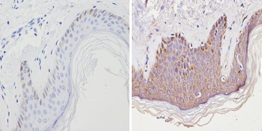 Immunohistochemistry (Formalin/PFA-fixed paraffin-embedded sections) - Anti-Cannabinoid Receptor II antibody (ab3561)