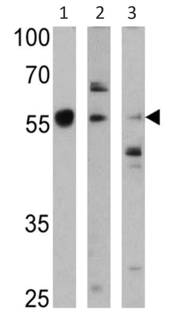 Western blot - Anti-Cytochrome P450 4A/CYP4A11 antibody (ab3573)